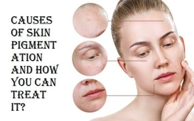 Understanding Skin Pigmentation and how to treat it