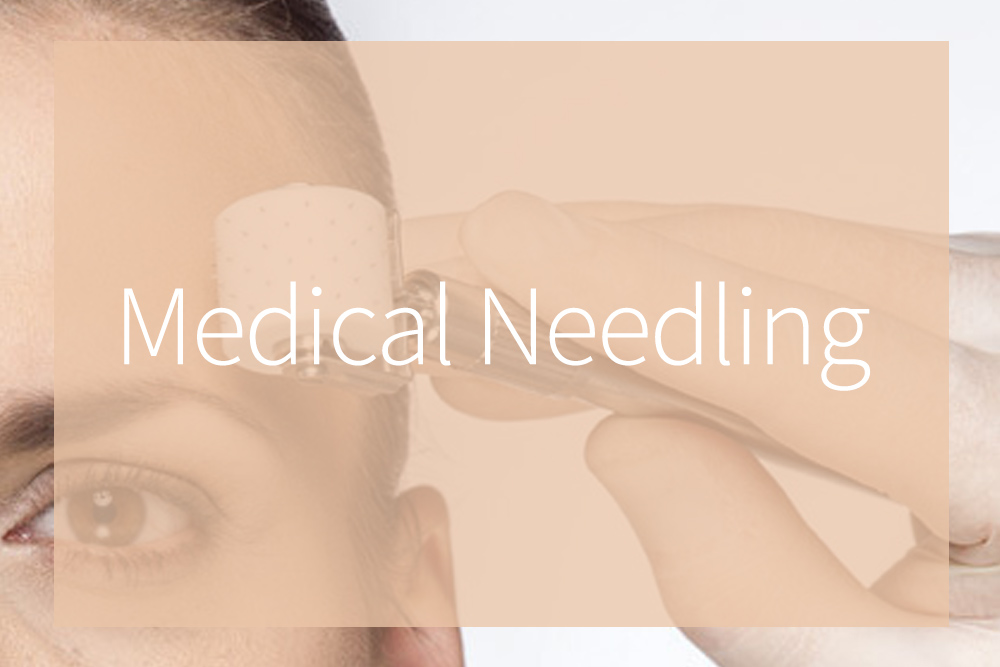 Medical Skin Needling Treatments – Top 5 Most Frequently Asked Questions