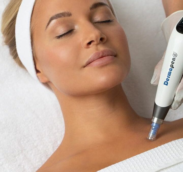 What to Expect in your Dermapen Gold Treatment